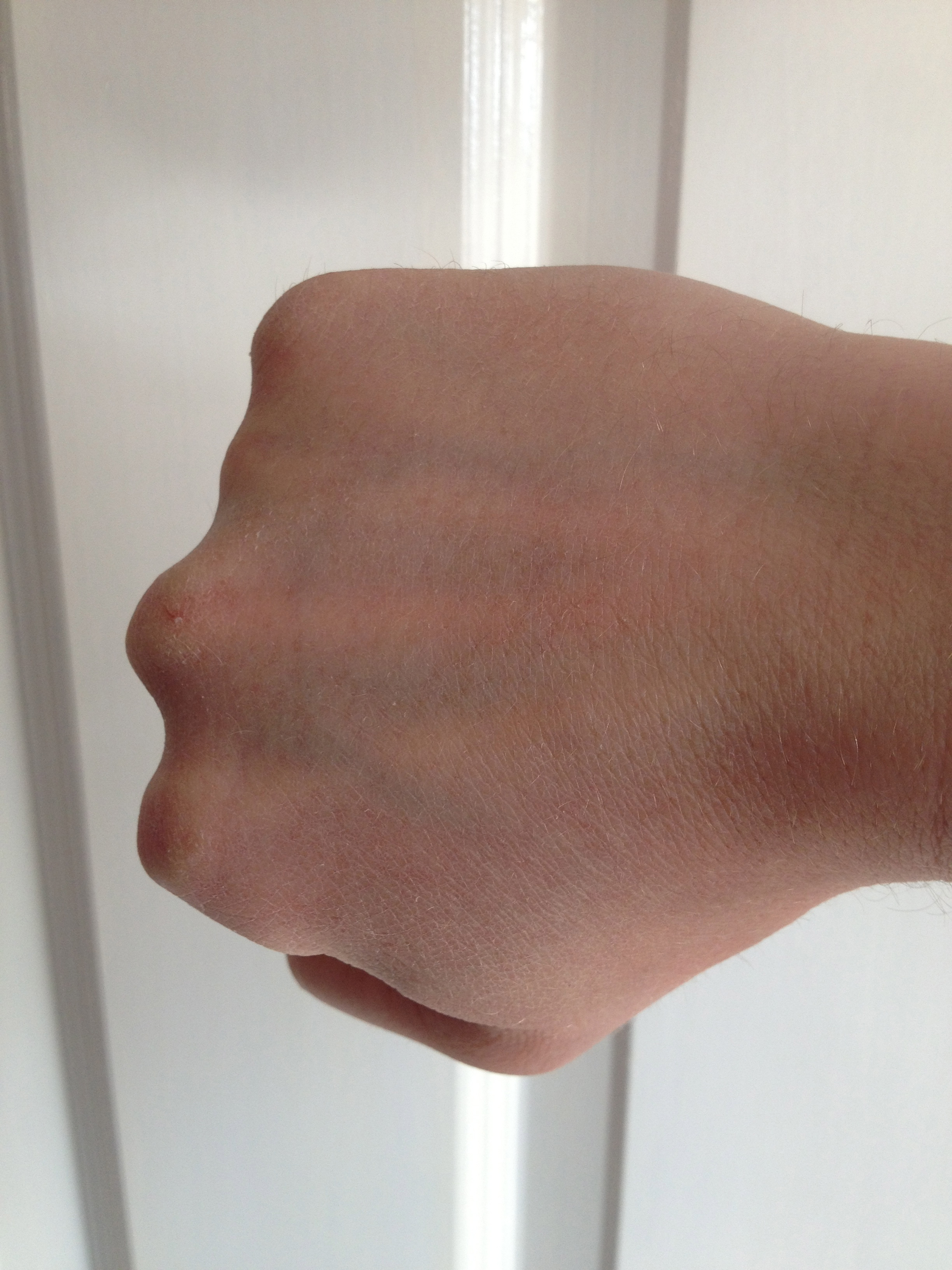 Recovered broken hand, 4 months post break